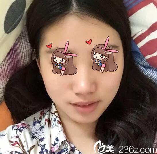上海华美陈颖下颌角磨骨术真人案例6