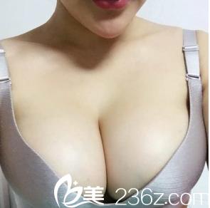 我在重庆东方做假体隆胸经历难忘,腋下开口2个月呈无痕效果