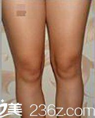 悦美整形大腿吸脂前