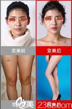 郑州悦美鼻综合和腿吸脂案例