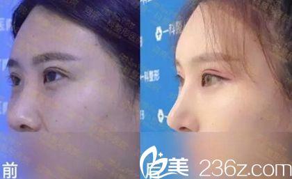 """河南一科做的眼睛+鼻子 这对CP整形让她大享春光""""美"""""""