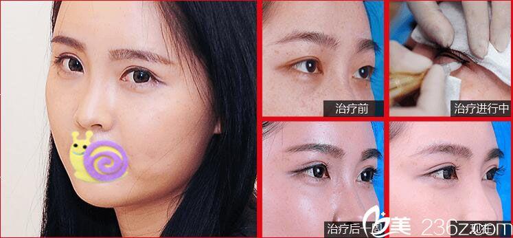 美瞳线+眼部整形案例