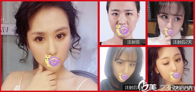 五官整形+瘦脸针案例