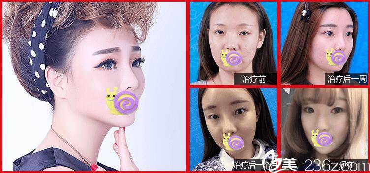 光电美肤+鼻综合案例