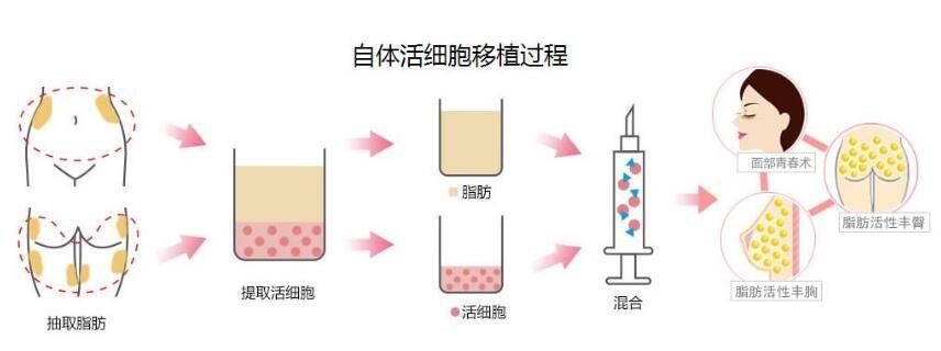 上海美伊莱王世专自体脂肪隆胸讲解2