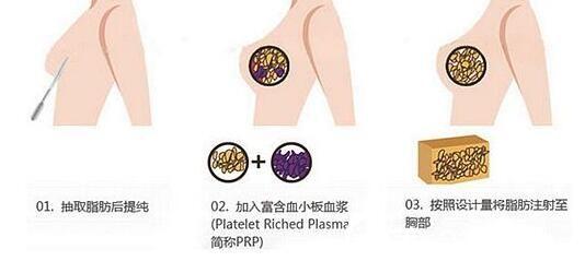 上海美伊莱王世专自体脂肪隆胸讲解3