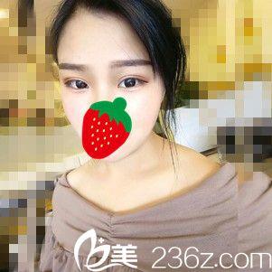 找王滨福医生做双眼皮一个月恢复过程,原来我也可以拥有电眼