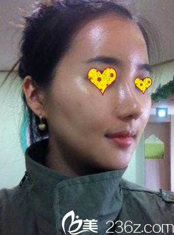 驼峰鼻术后