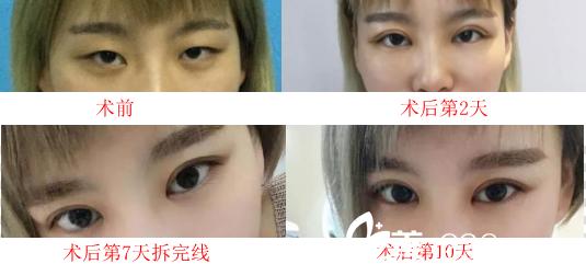 安徽省合肥台美做双眼皮怎么样?看双眼皮10天恢复过程