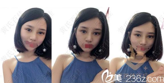 黄庆武双眼皮术后1个月自拍