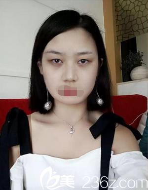 成都武侯黄氏百佳医疗美容门诊部黄庆武术前照片1