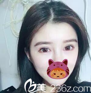 上海美立方医疗美容医院滕彦术后照片1