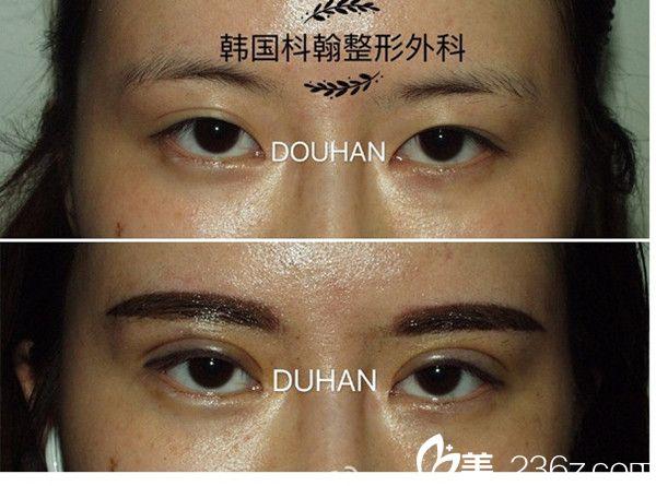 申枓翰院长双眼皮修复案例