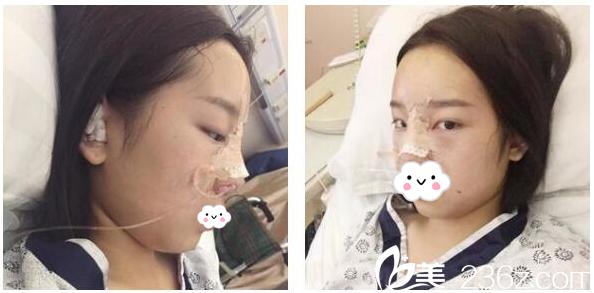隆鼻术后第2天恢复情况