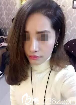 襄阳伊莱美整形美容门诊部王月华术后照片1