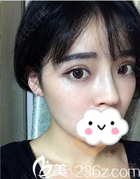 给怕手术的亲们分享我找成都黄氏百佳颜明辉做线雕隆鼻的恢复全过程