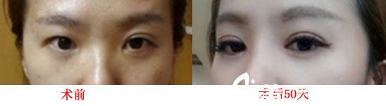 安徽合肥瑞亚整形美容医院好吗?分享双眼皮整形案例效果