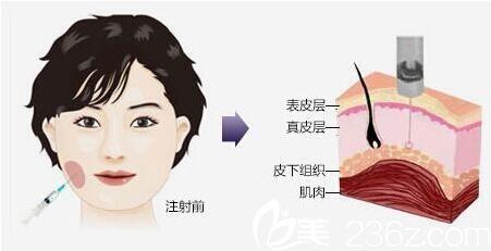 上海美立方金晓东讲解廋脸针