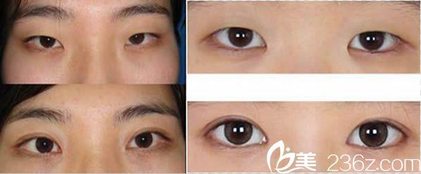 邱健钦双眼皮和开眼角案例图