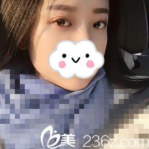 哈尔滨欧华医疗美容医院李东山术后照片1