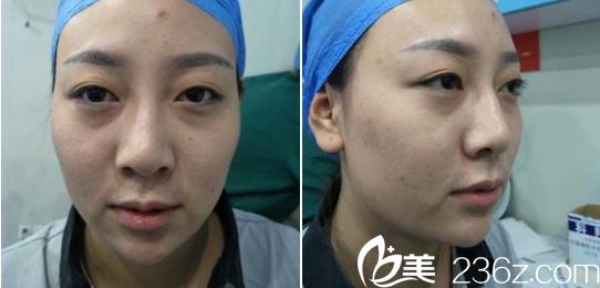 分享我在济南鹏爱医院找李罡医生做的双眼皮日记