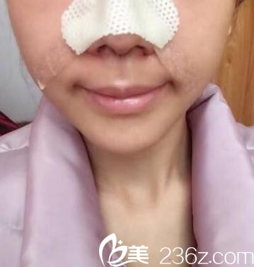 硅胶隆鼻术后第二天