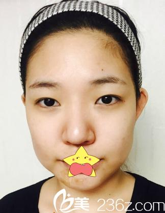 韩国明星线starline整形外科医院朴晙术前照片1