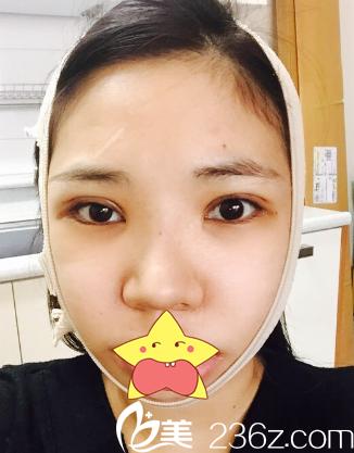 嘿哈鼻综合 全切双眼皮 下颌角让我在韩国明星线starline整形做遍了