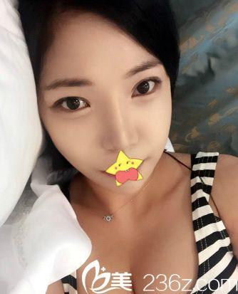 嘿哈鼻综合+全切双眼皮+下颌角让我在韩国明星线starline整形做遍了