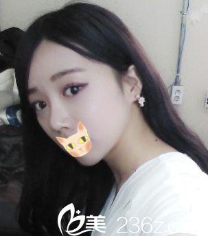 喵~韩国Motive整形外科我来做自体软骨隆鼻+切开双眼皮+瘦脸针咯