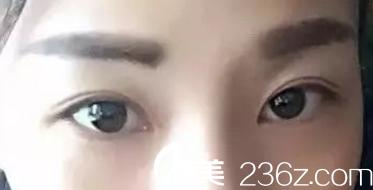 双眼皮术后一月