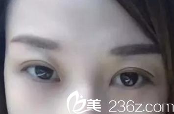 北京叶美人医院切开双眼皮