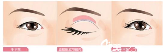 双眼皮手术效果