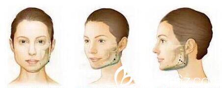 上海华美李健告诉你什么是下颌角切除术,轻松甩掉大饼脸