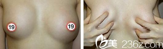 讲述花9980元在合肥瑞典做假体隆胸后三个月亲身经历