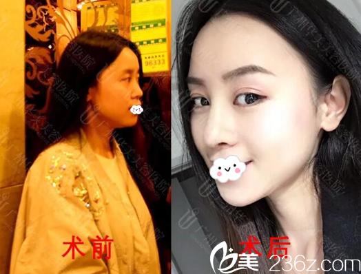 自卑的我鼓起勇气找广州华美沈绍勇医生做了耳软骨鼻综合隆鼻手术
