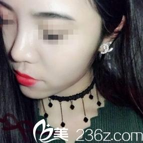 男朋友陪我到重庆星范丽格做的假体隆鼻整形,帮我掏了8千多