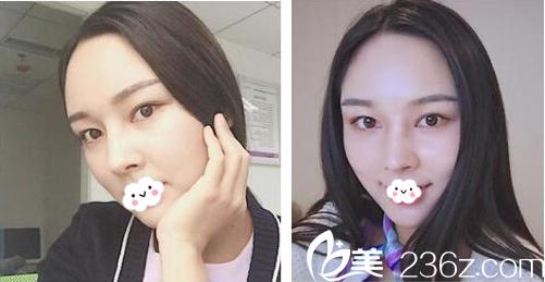 在闺蜜的鼓励下年前找深圳美莱李战强教授做了膨体鼻综合隆鼻手术