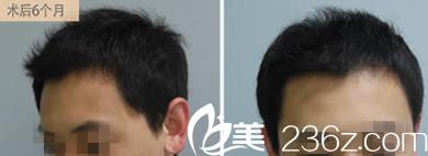 直击—80后小伙在韩国乔颜思美容医院亲述毛发再生过程感受