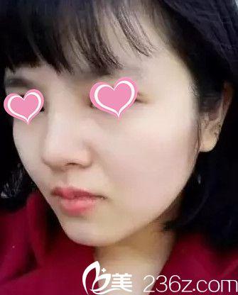看了超多隆鼻整形案例后果断选择石家庄贵美人 术后20天让我蜕变少女风格小翘鼻