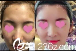 诉苦我在北京禾力康医院做自体脂肪丰太阳穴+额头过程