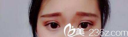 合肥立新杨鹏做的全切双眼皮让我怀疑给我整失败了?!