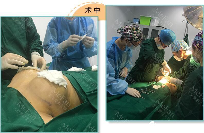 隆胸年术过程