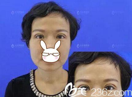 郑州艾美整形员工亲自体验双眼皮手术 美丽是女人高贵的秘方