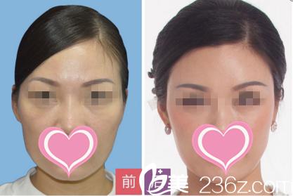 面部年轻化手术效果