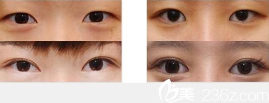 厦门妇幼保健院整形科双眼皮案例