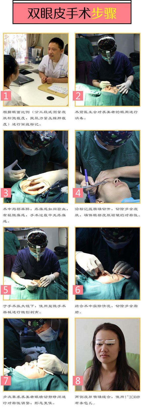 金华丽都整形双眼皮手术步骤