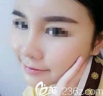 芜湖爱容张庆元给我做自体脂肪填充全脸+自体脂肪隆鼻术后21天恢复过程图