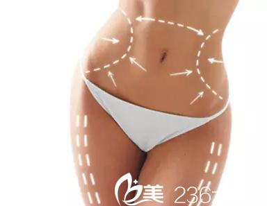 南宁自体脂肪移植哪好?南宁韩星自体脂肪填充16800元起帮你拥有童颜
