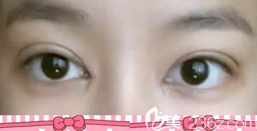 啦啦啦!我让厦门妇幼保健院郭耐强割完双眼皮7天的恢复效果真不错
